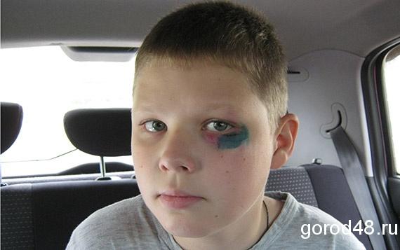 Комариный укус у ребенка на лице фото