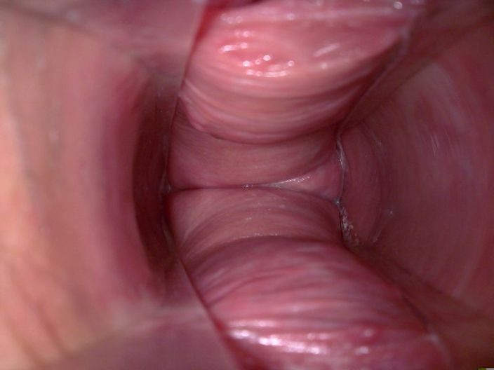 Internal vaginal lump