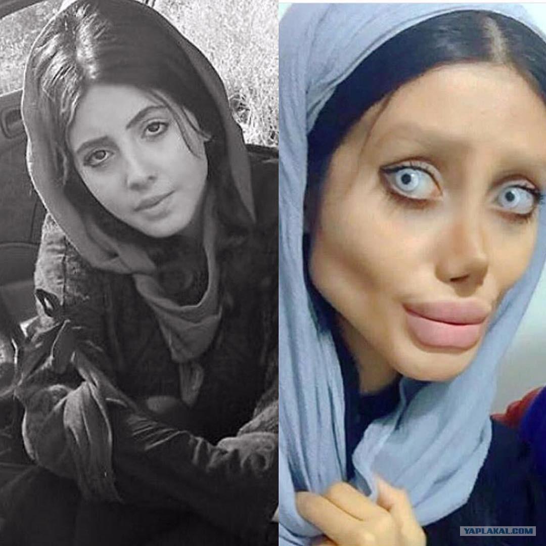 Девушка хотела стать похожей на Анджелину Джоли, у нее почти получилось, но рекомендации