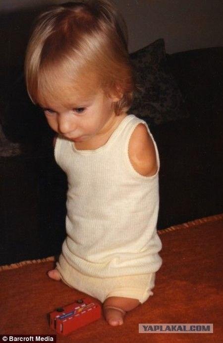Девочка, родившаяся без рук, уверенно встает на ноги - Общество