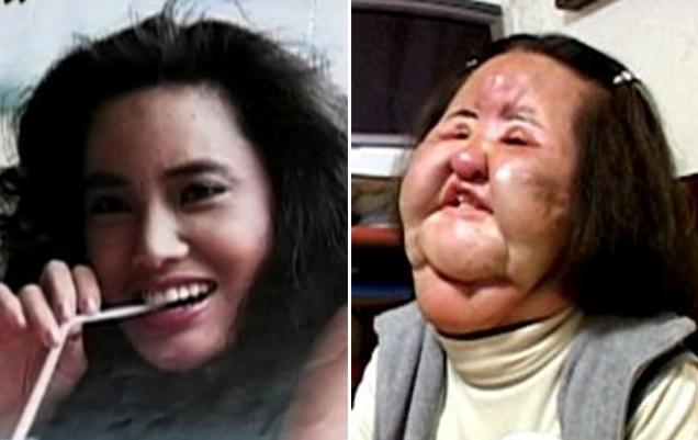 ужасы фото пластической хирургии
