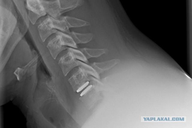 Новосибирские хирурги впервые заменили межпозвоночный диск сохраняющим все функции протезом
