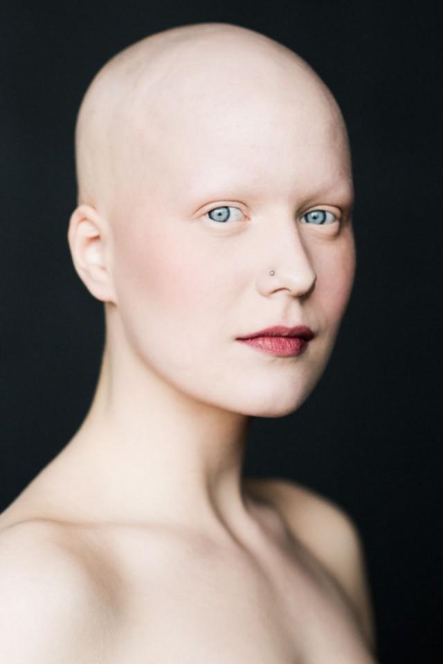 Девушка без бровей и ресниц фото