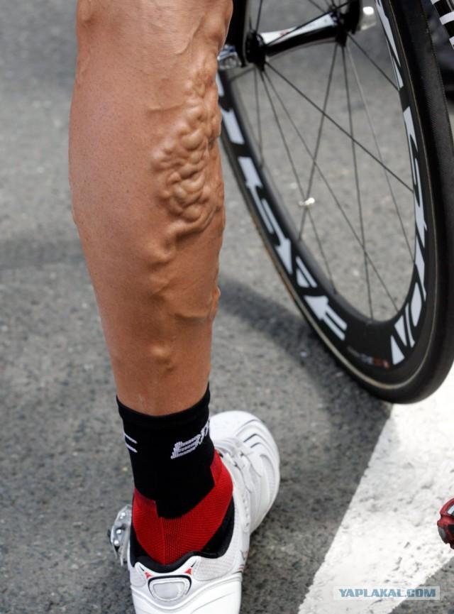 что фотограф фото ног велоспорт открытки для любимых